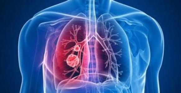 卫健委:新型冠状病毒感染肺炎确诊571例 死亡17例